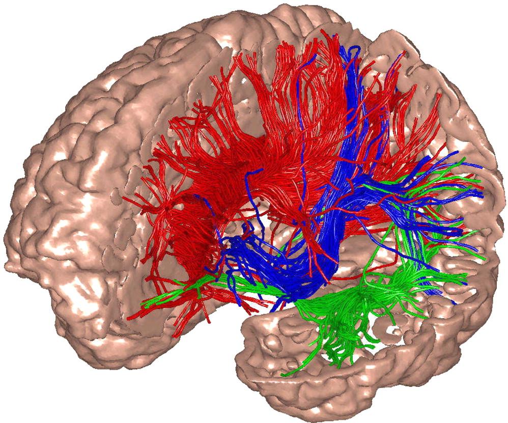 Fibras blancas del sistema talamo-cortical